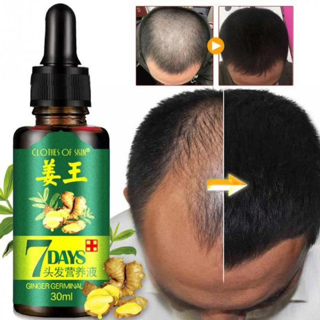 Unisex Anti Hair Loss Treatment Nutrition Liquid